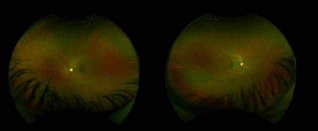 Причину дислексии нашли в симметричных глазах