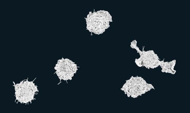 Иммунитет видит в больном сердце вирусную инфекцию