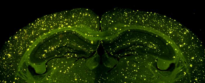Как связаны воспаление и болезнь Альцгеймера